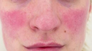 rosacea-treatment-galway
